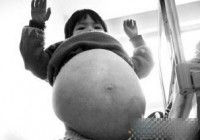 有数的大肚病熬煎着可怜的小孩